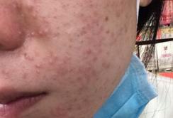 长痘痘是什么原因