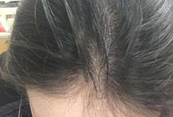 赣州中研中医治脱发的办法效果显着吗?