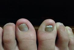 生活中如何预防灰指甲?