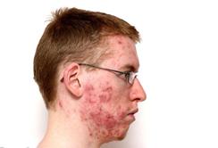 痤疮的诱发因素都有哪些?