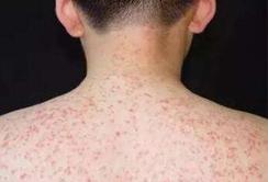 在家怎么治疗皮炎?