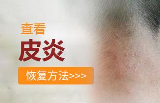 皮炎的医治方法